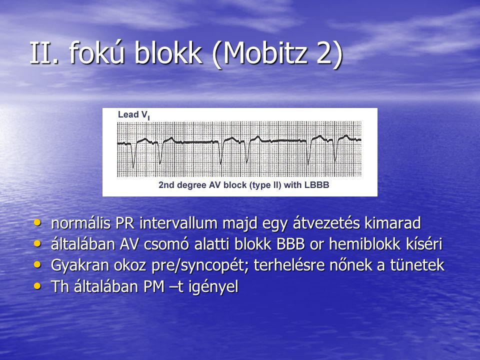 II. fokú blokk (Mobitz 2) normális PR intervallum majd egy átvezetés kimarad. általában AV csomó alatti blokk BBB or hemiblokk kíséri.