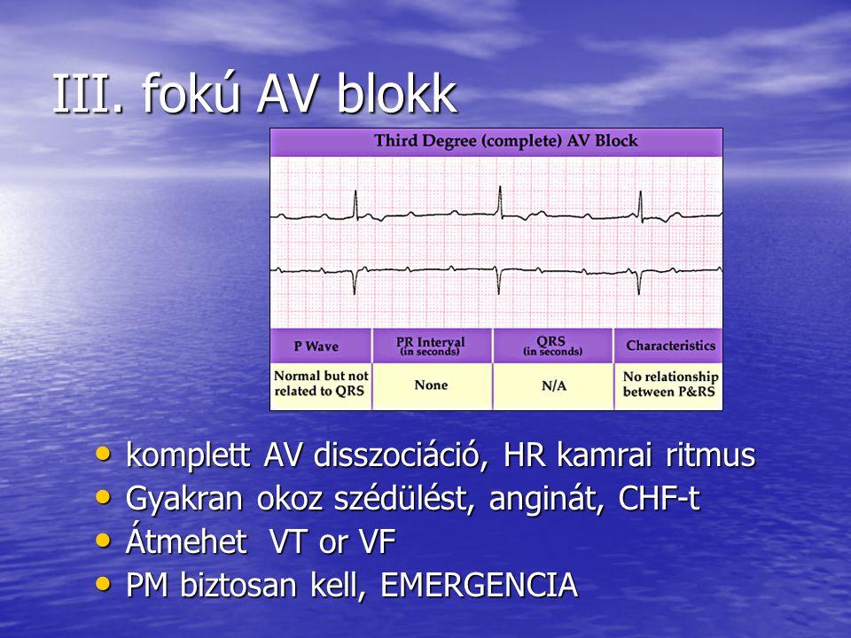 III. fokú AV blokk komplett AV disszociáció, HR kamrai ritmus