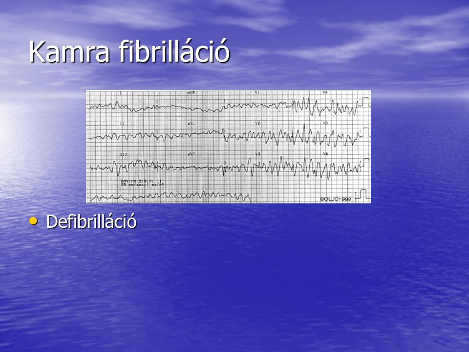 Kamra fibrilláció Defibrilláció
