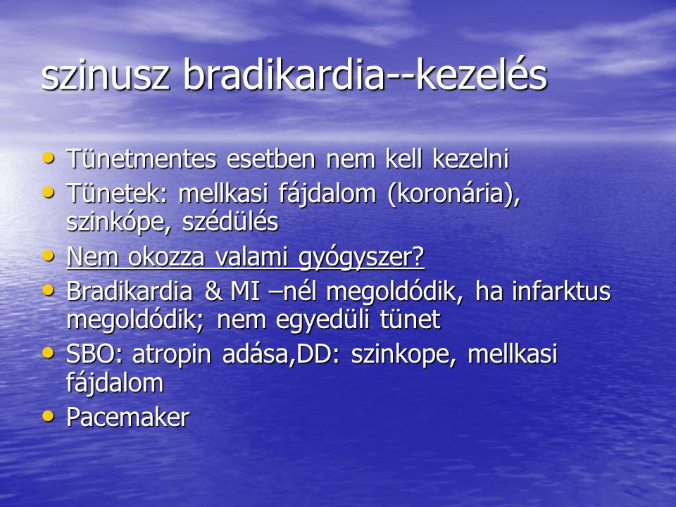 szinusz bradikardia--kezelés