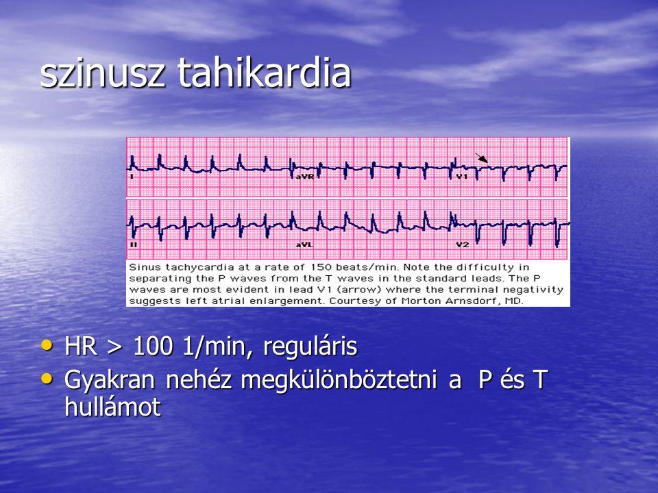 szinusz tahikardia HR > 100 1/min, reguláris