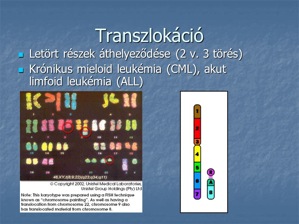 Transzlokáció Letört részek áthelyeződése (2 v. 3 törés)
