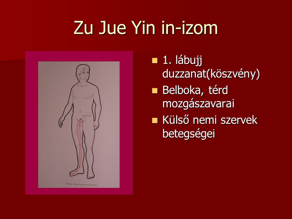 Zu Jue Yin in-izom 1. lábujj duzzanat(köszvény)