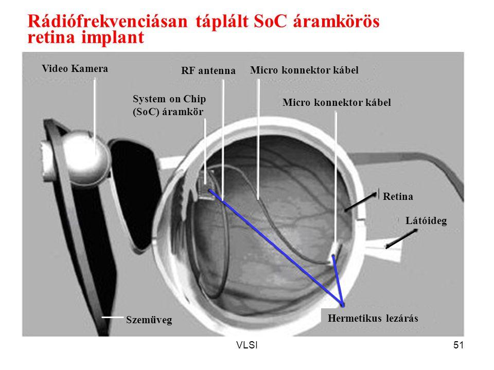 Rádiófrekvenciásan táplált SoC áramkörös retina implant