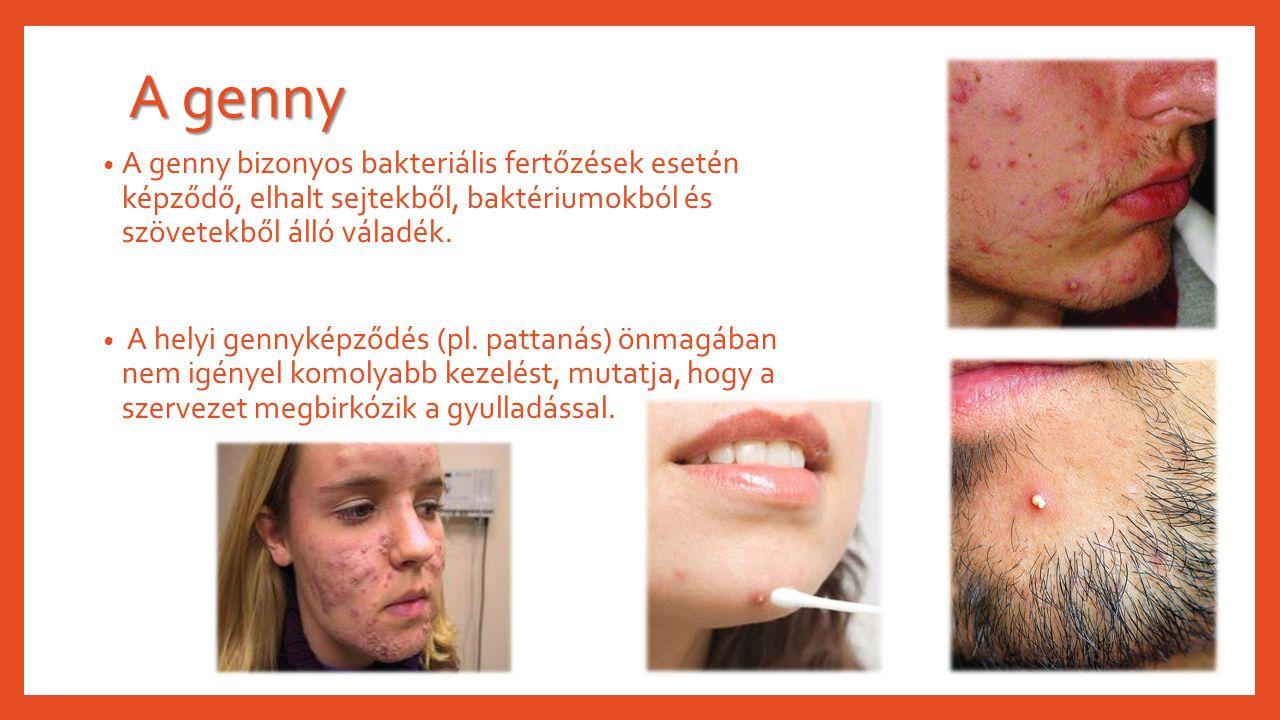 A genny A genny bizonyos bakteriális fertőzések esetén képződő, elhalt sejtekből, baktériumokból és szövetekből álló váladék.