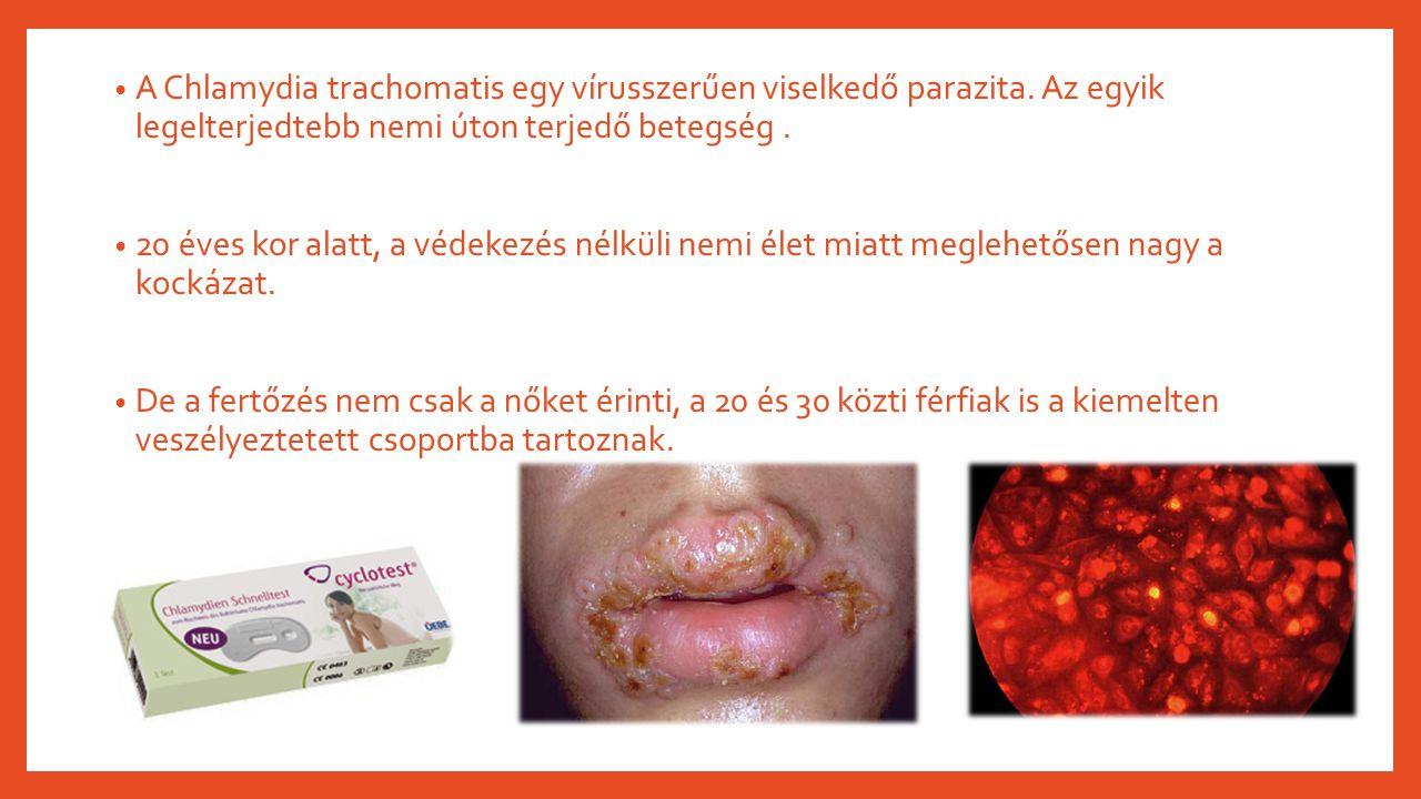 A Chlamydia trachomatis egy vírusszerűen viselkedő parazita