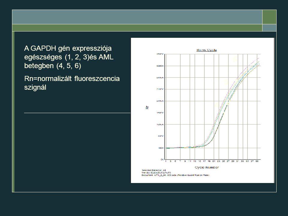 A GAPDH gén expressziója egészséges (1, 2, 3)és AML betegben (4, 5, 6)