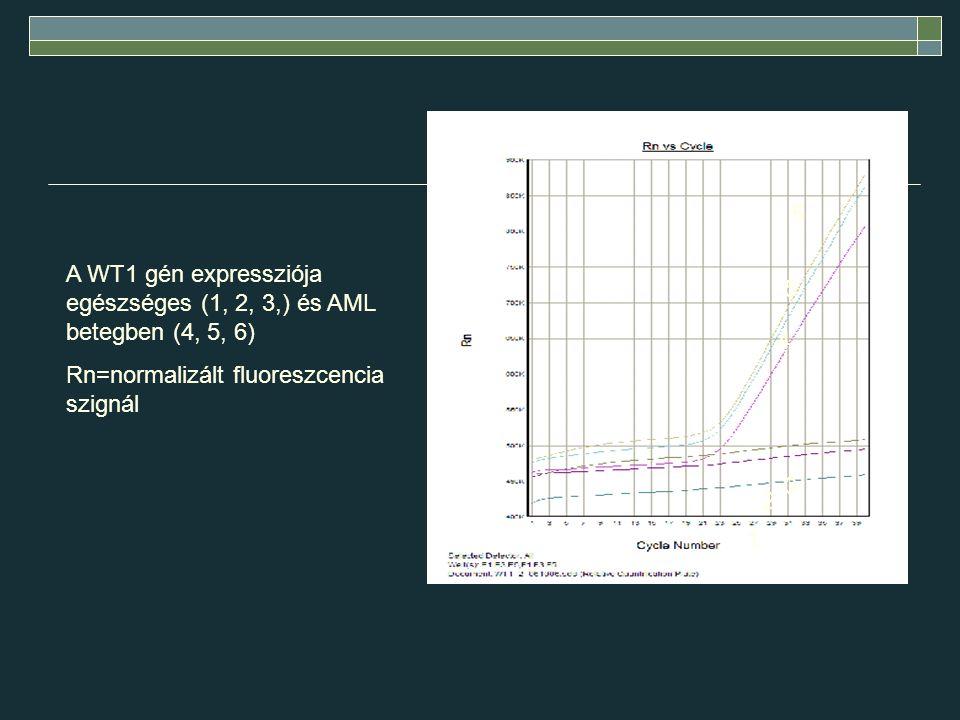 6 A WT1 gén expressziója egészséges (1, 2, 3,) és AML betegben (4, 5, 6) Rn=normalizált fluoreszcencia szignál.