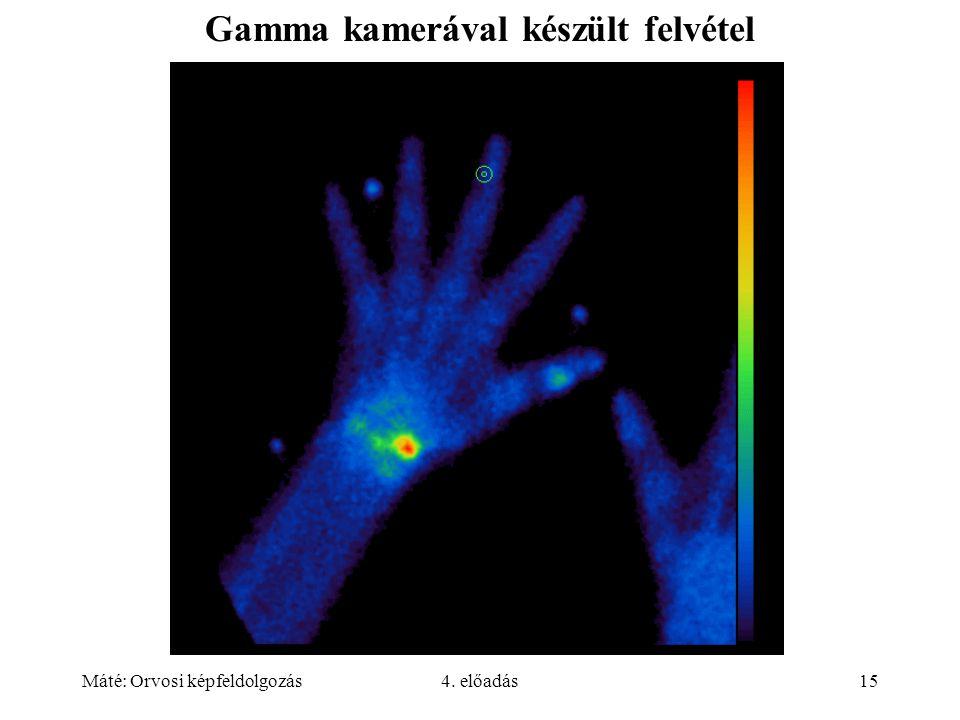 Gamma kamerával készült felvétel