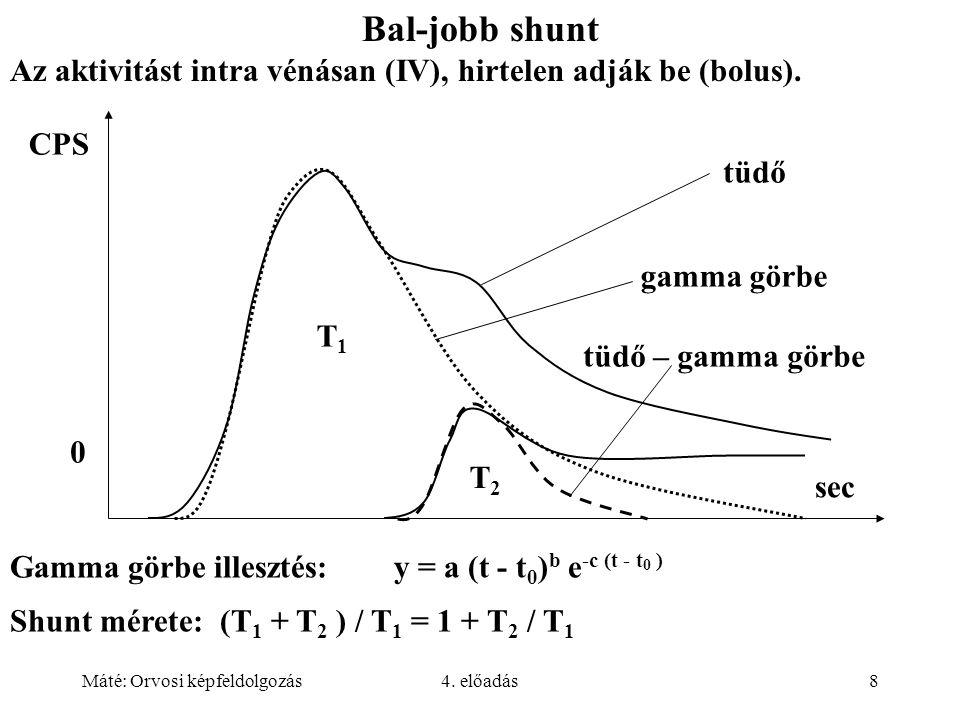 Bal-jobb shunt Az aktivitást intra vénásan (IV), hirtelen adják be (bolus). tüdő. gamma görbe. tüdő – gamma görbe.