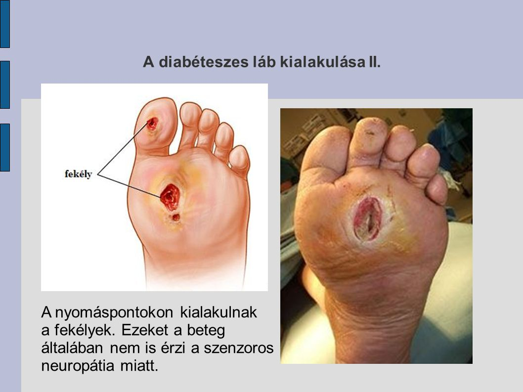 A diabéteszes láb kialakulása II.
