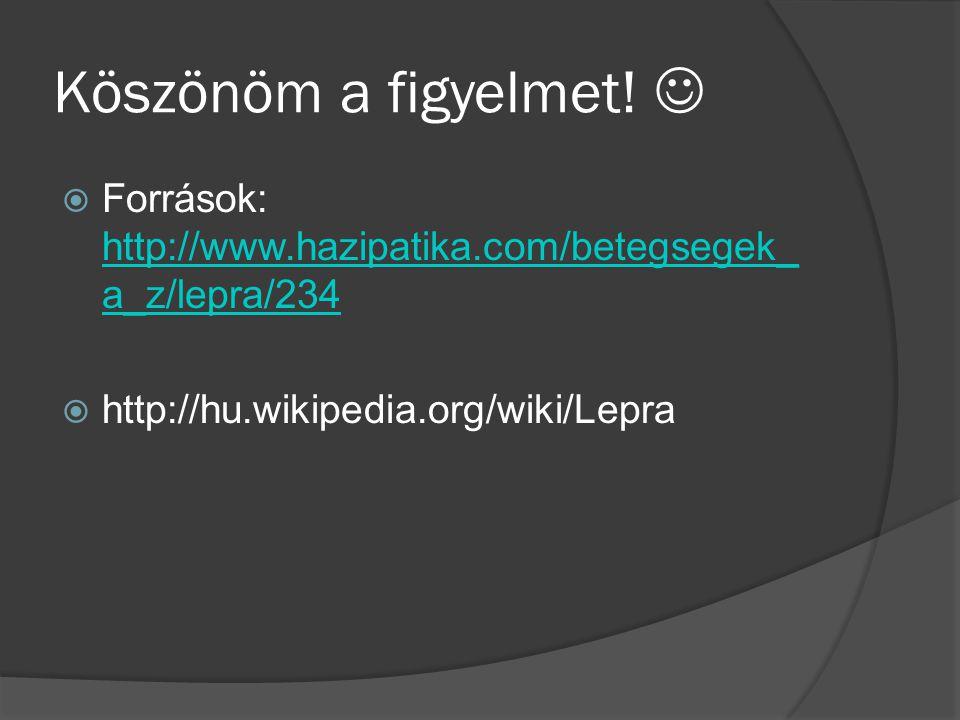 Köszönöm a figyelmet.  Források: http://www.hazipatika.com/betegsegek_a_z/lepra/234.