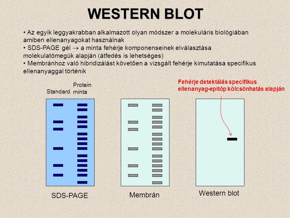 WESTERN BLOT Western blot SDS-PAGE Membrán