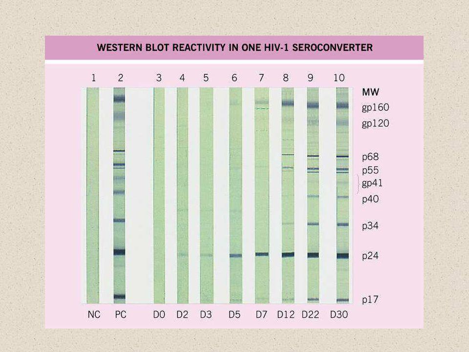 A westernben HIV fertőzött sejtvonal fehérje lizátumát használnak antigénként.