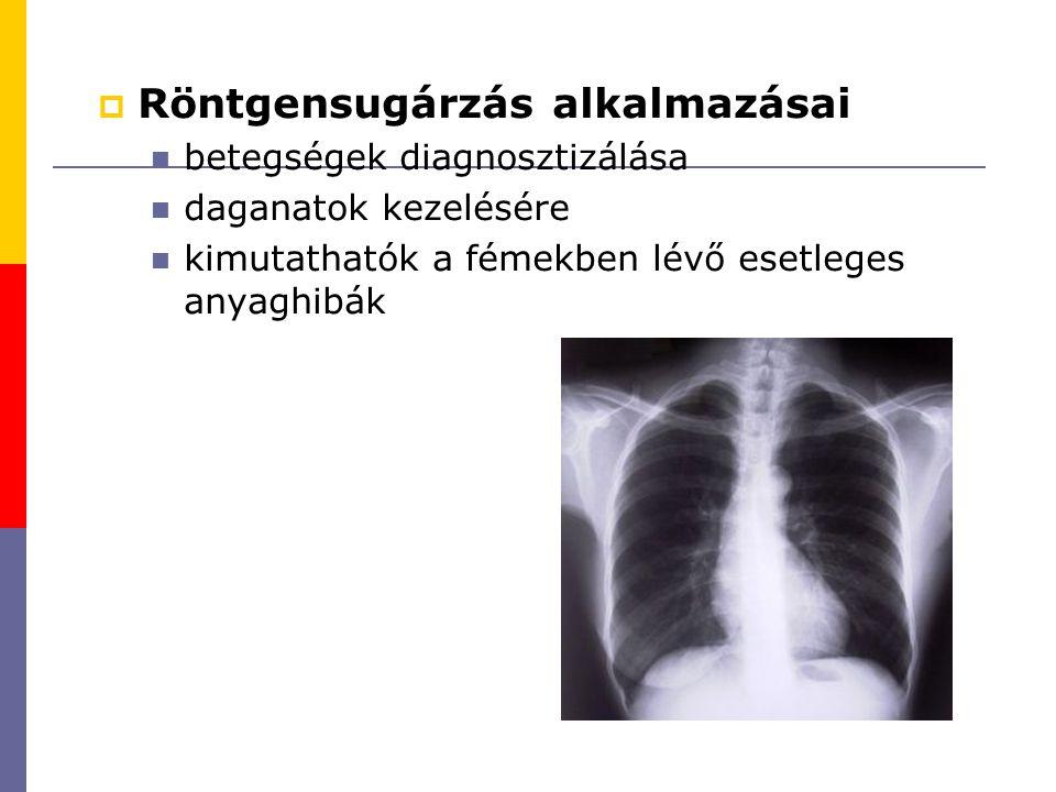 Röntgensugárzás alkalmazásai