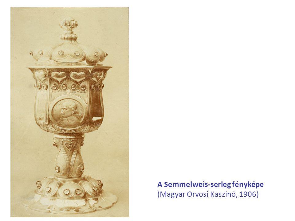 A Semmelweis-serleg fényképe