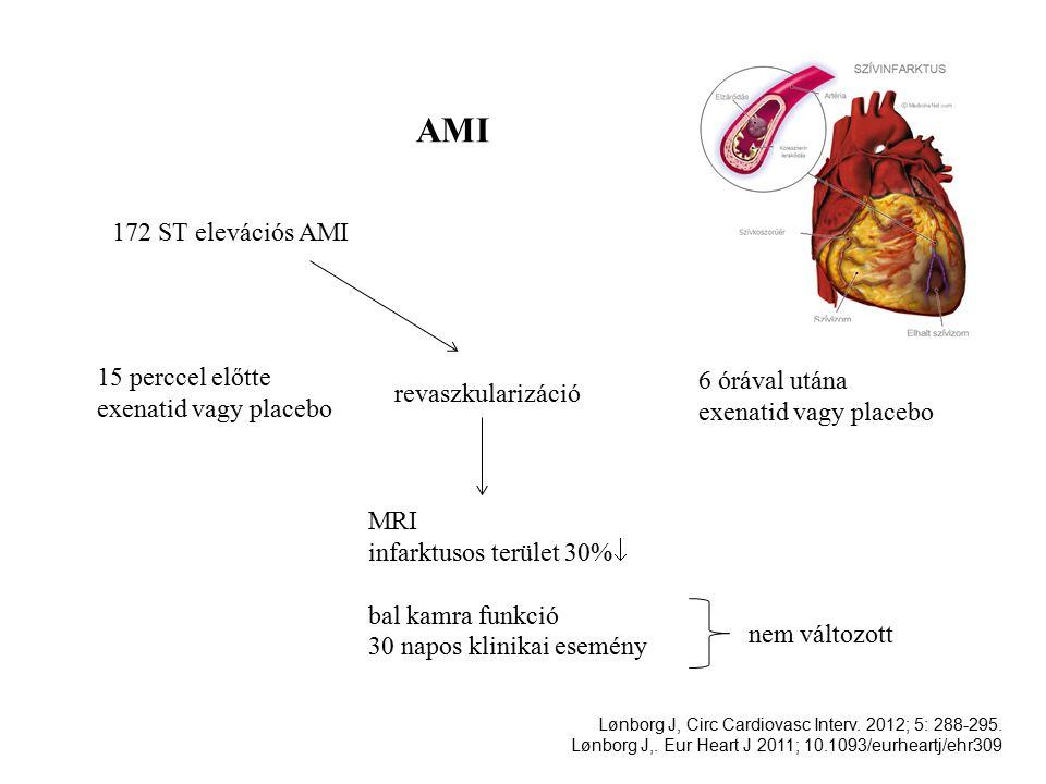 AMI 172 ST elevációs AMI 15 perccel előtte exenatid vagy placebo