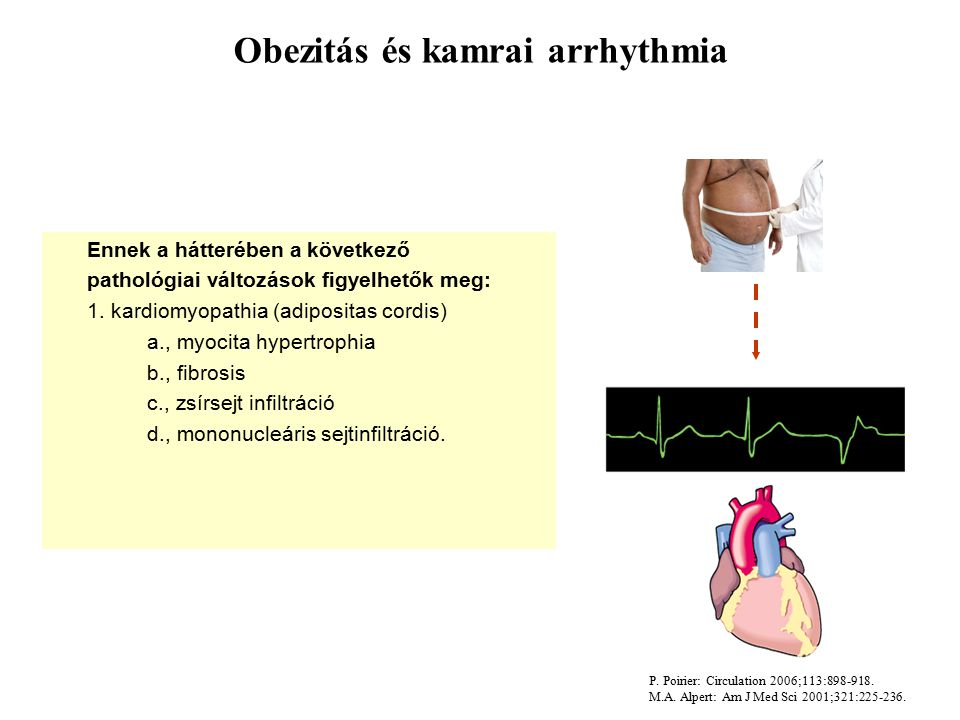 Obezitás és kamrai arrhythmia