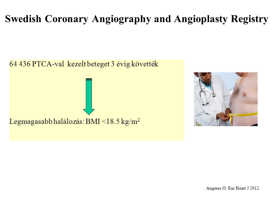 Swedish Coronary Angiography and Angioplasty Registry