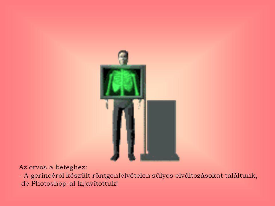 Az orvos a beteghez: - A gerincéről készült röntgenfelvételen súlyos elváltozásokat találtunk,