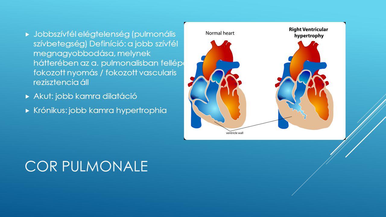 Jobbszívfél elégtelenség (pulmonális szívbetegség) Definíció: a jobb szívfél megnagyobbodása, melynek hátterében az a. pulmonalisban fellépő fokozott nyomás / fokozott vascularis rezisztencia áll