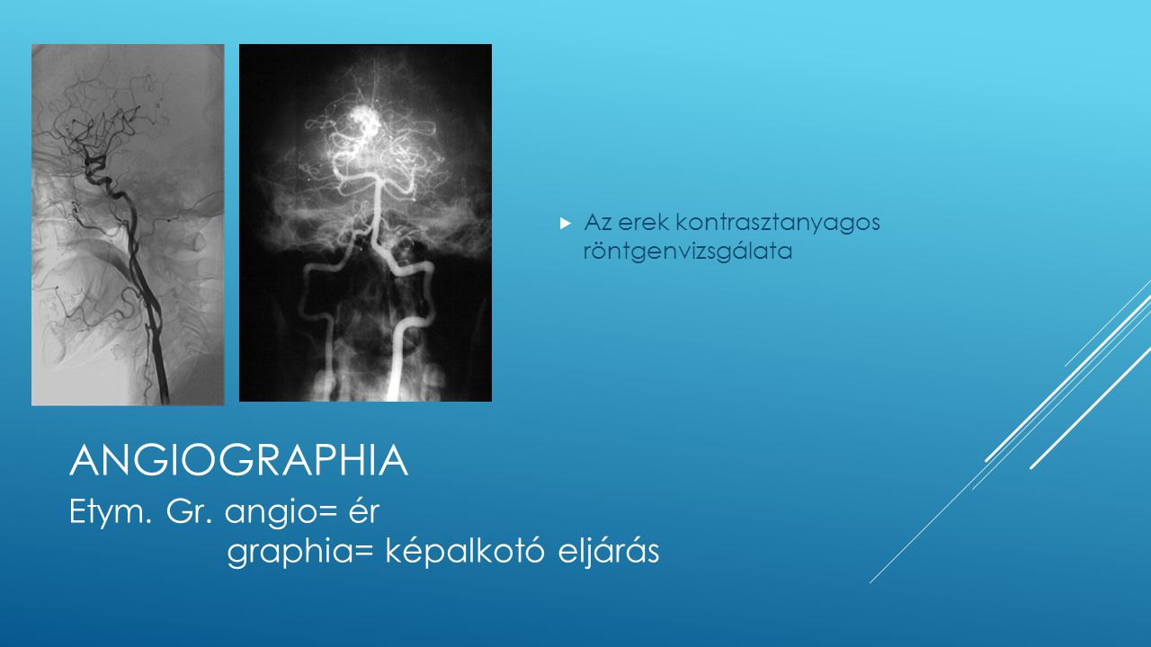 Angiographia Etym. Gr. angio= ér graphia= képalkotó eljárás