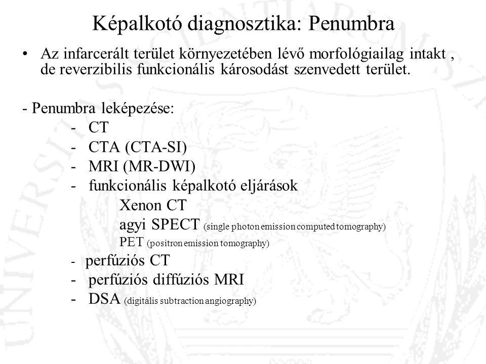 Képalkotó diagnosztika: Penumbra