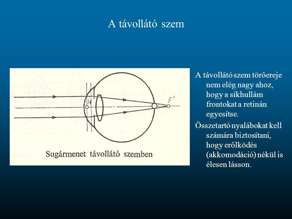 A távollátó szem A távollátó szem törőereje nem elég nagy ahoz, hogy a síkhullám frontokat a retinán egyesítse.