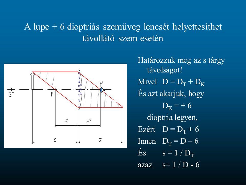 A lupe + 6 dioptriás szemüveg lencsét helyettesíthet távollátó szem esetén