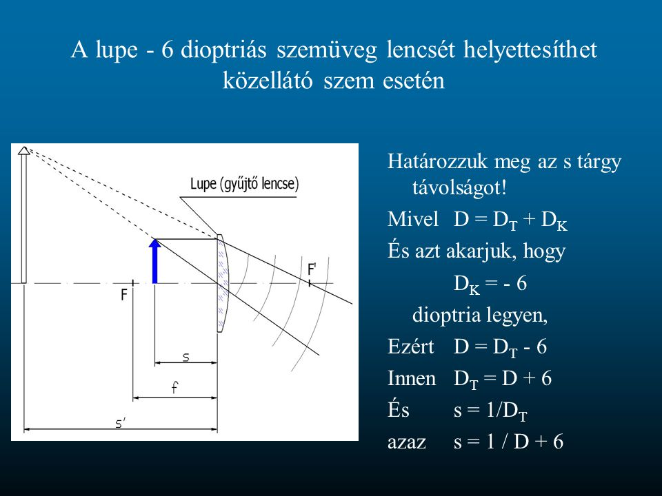 A lupe - 6 dioptriás szemüveg lencsét helyettesíthet közellátó szem esetén