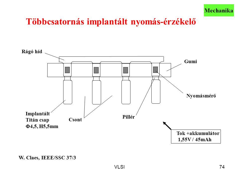 Többcsatornás implantált nyomás-érzékelő