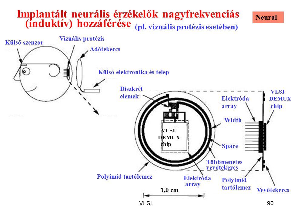 Implantált neurális érzékelők nagyfrekvenciás (induktív) hozzáférése