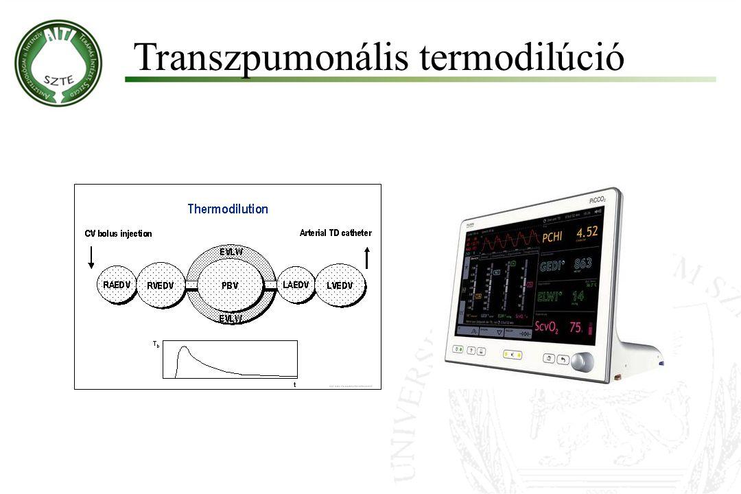 Transzpumonális termodilúció