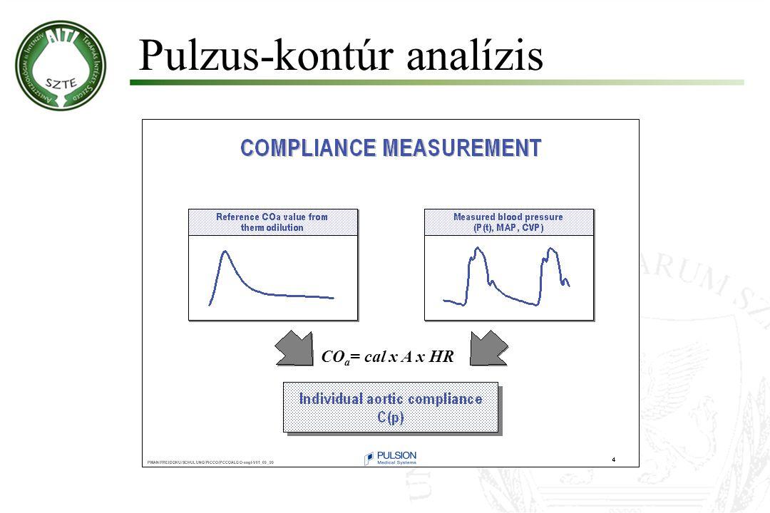 Pulzus-kontúr analízis