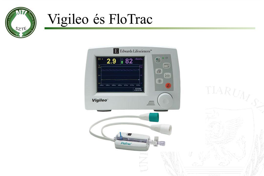 Vigileo és FloTrac Molnár '99