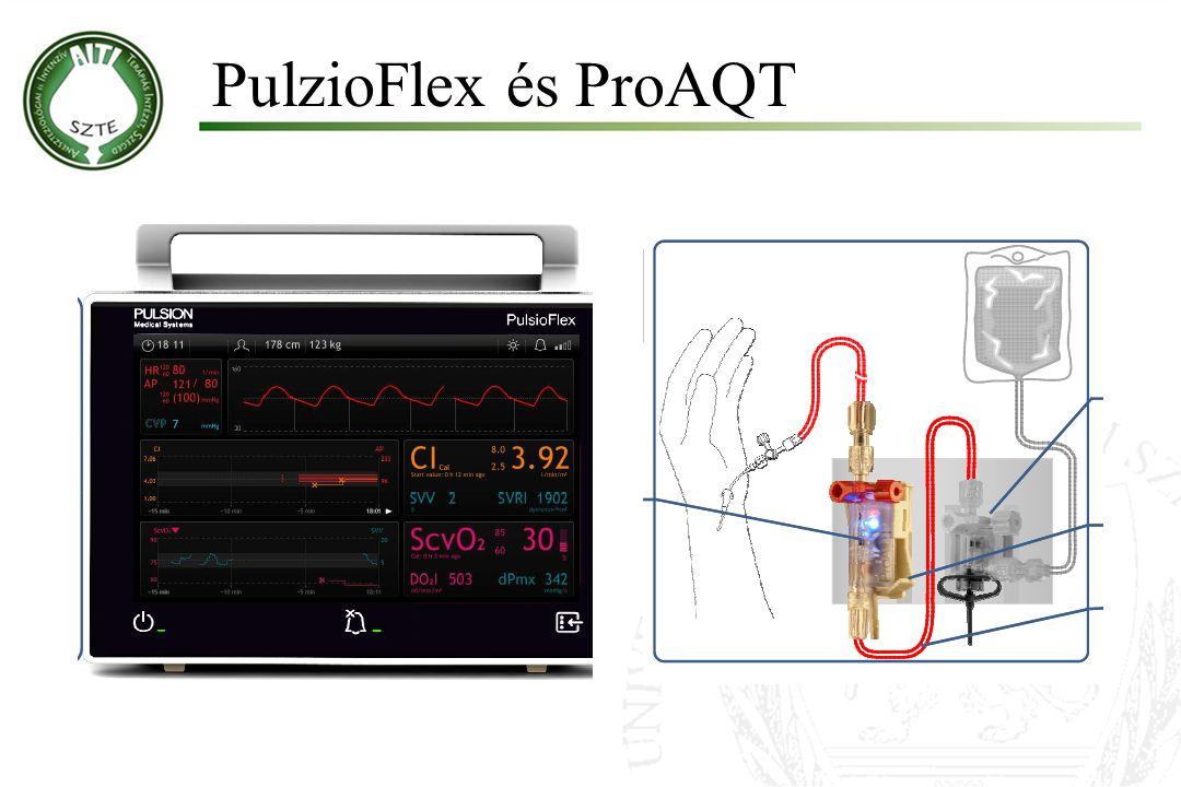 PulzioFlex és ProAQT Molnár '99