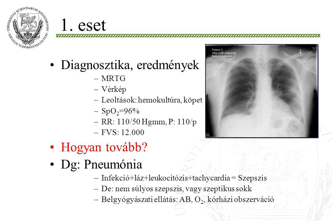 1. eset Diagnosztika, eredmények Hogyan tovább Dg: Pneumónia MRTG
