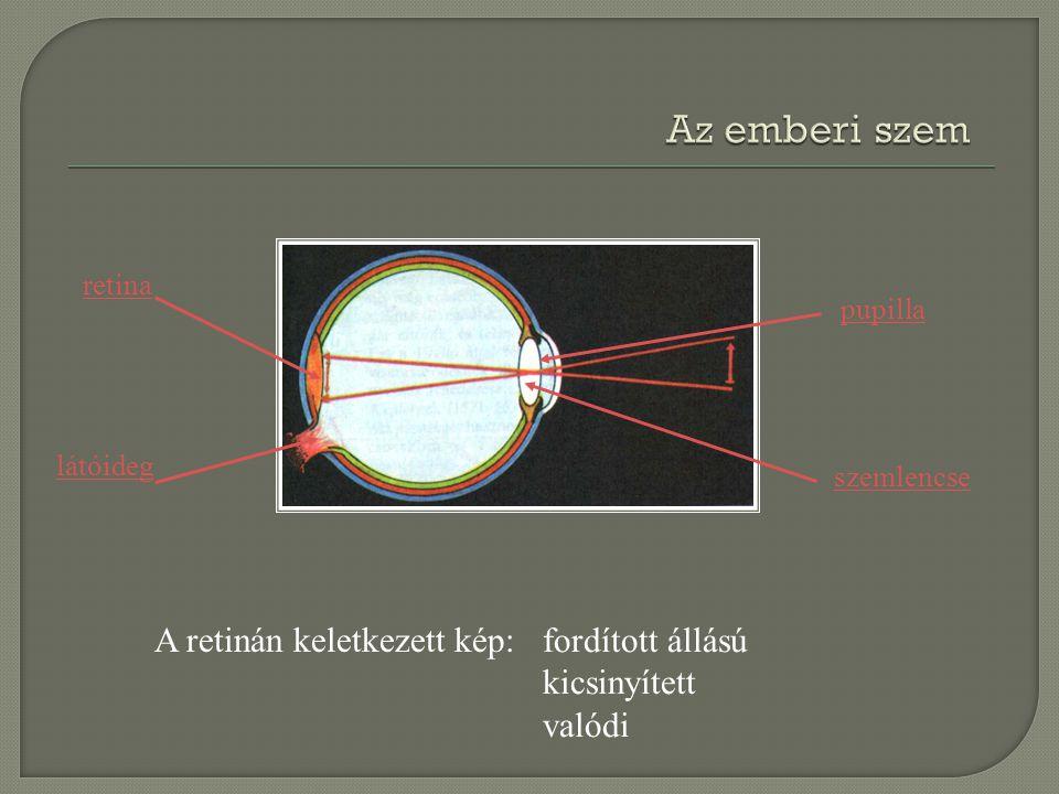 Az emberi szem A retinán keletkezett kép: fordított állású