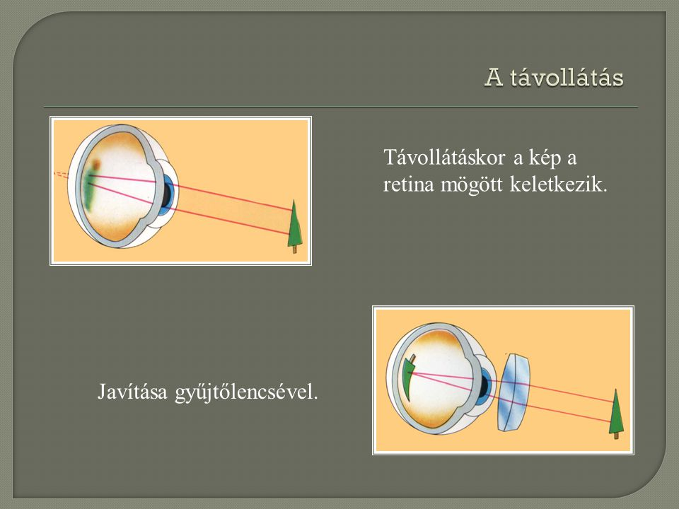 A távollátás Távollátáskor a kép a retina mögött keletkezik.