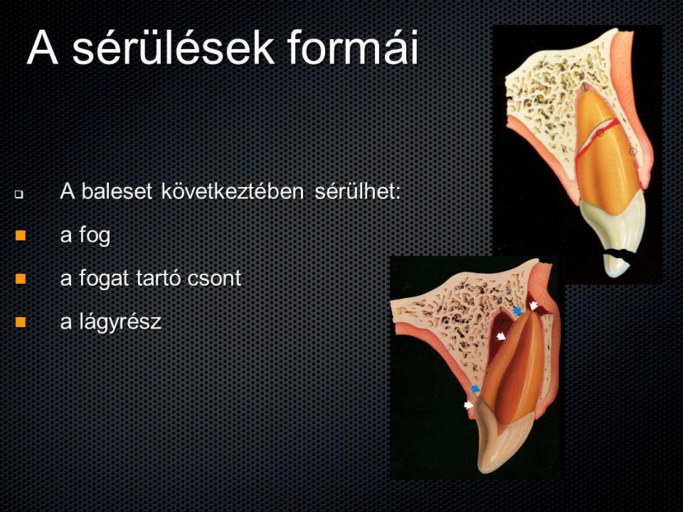 A sérülések formái A baleset következtében sérülhet: a fog