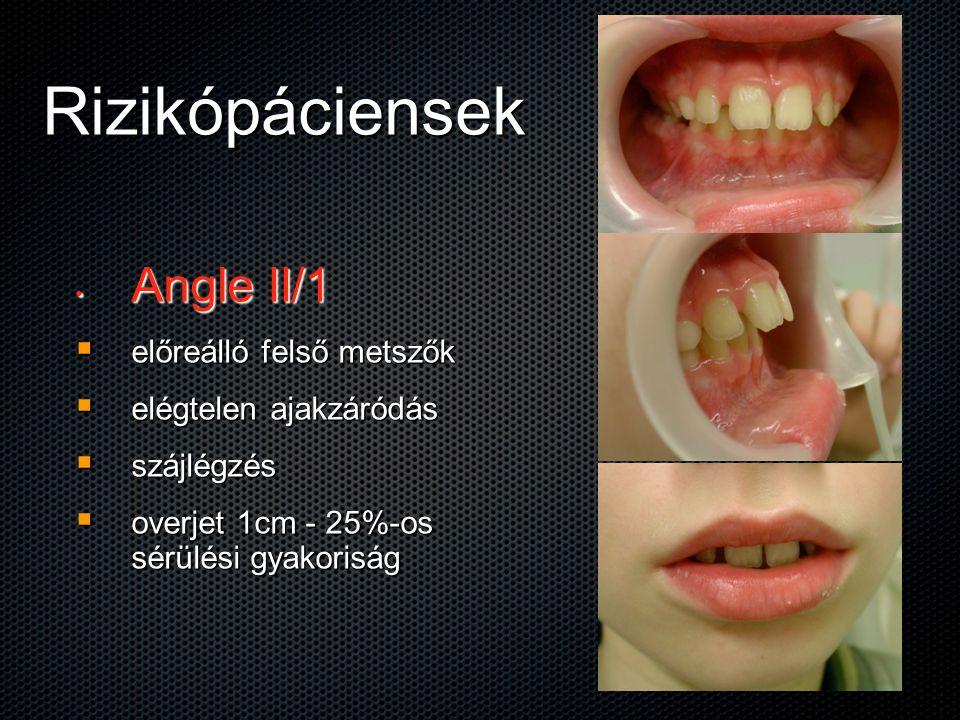Rizikópáciensek Angle II/1 előreálló felső metszők