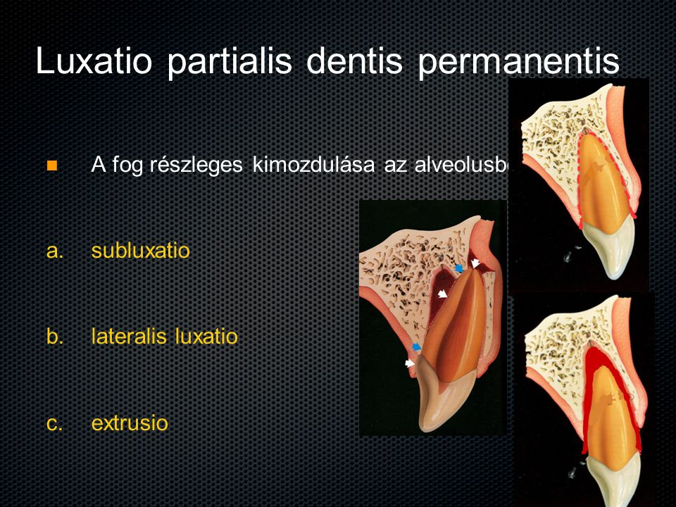 Luxatio partialis dentis permanentis