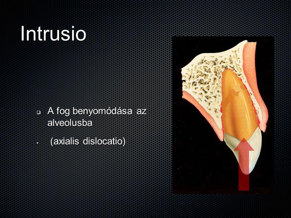 Intrusio A fog benyomódása az alveolusba (axialis dislocatio)