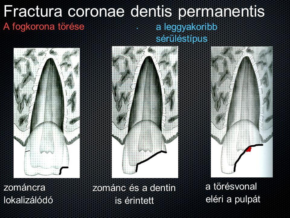 Fractura coronae dentis permanentis A fogkorona törése