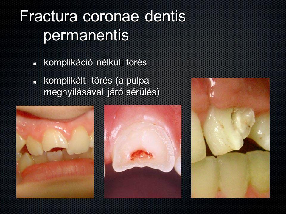 Fractura coronae dentis permanentis