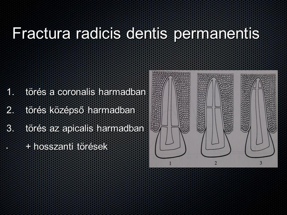 Fractura radicis dentis permanentis