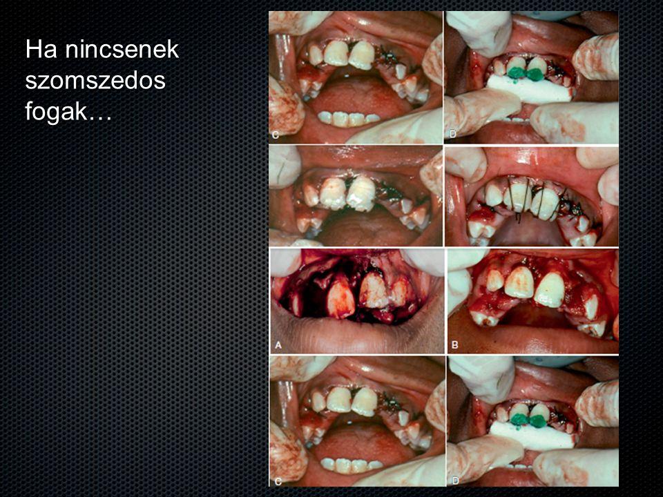 Ha nincsenek szomszedos fogak…