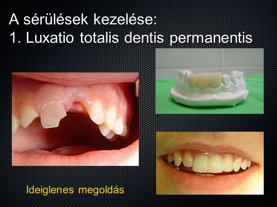 A sérülések kezelése: 1. Luxatio totalis dentis permanentis