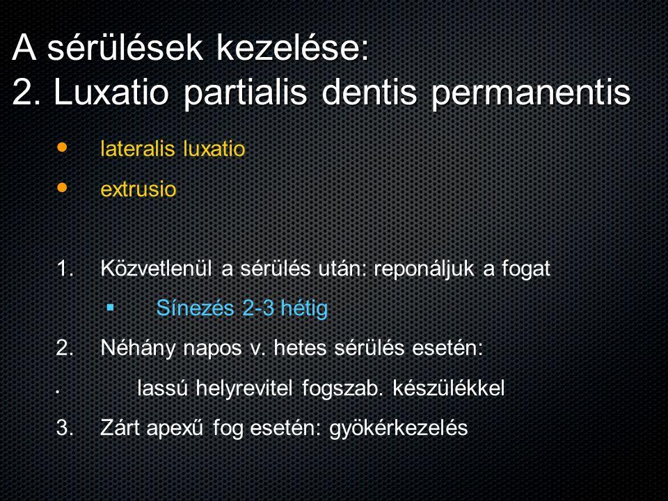 A sérülések kezelése: 2. Luxatio partialis dentis permanentis