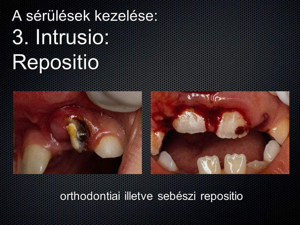 A sérülések kezelése: 3. Intrusio: Repositio